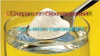Сода от болезней. Яд или панацея. Сода и зрение.(Пищевая сода - яд или панацея. Загадки соды. Сода в природе.Что лечит сода. Врачи о соде. 9:20 Сода и зрение...., 2015-04-11T14:27:16.000Z)