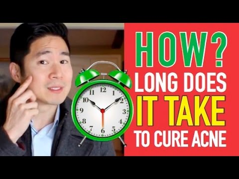 How long does it take to cure acne?