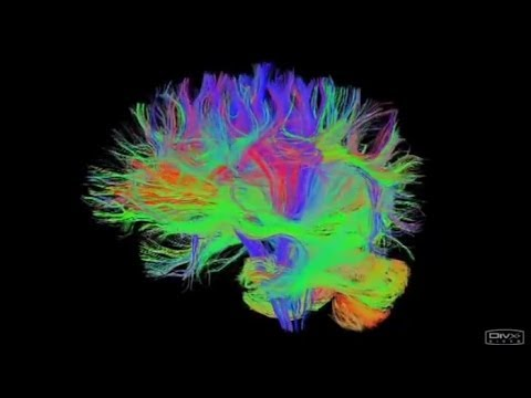 Researchers link aging with changes in brain networks related to cognition Hqdefault