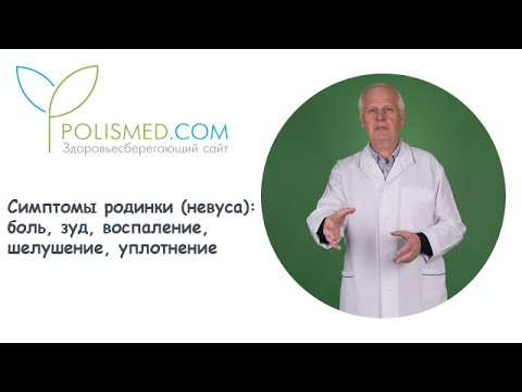 Симптомы родинки (невуса): боль, зуд, воспаление, шелушение, уплотнение