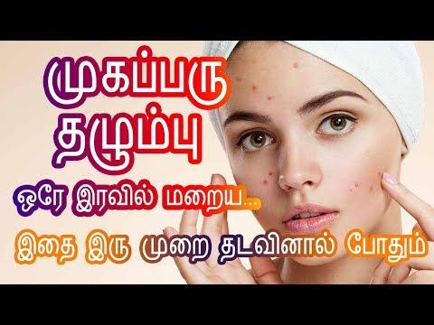 முகப்பரு மறைய - Pimple marks removal Homeremedies in Tamil Beauty Tips to remove pimples at Home