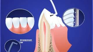 видео Чистка зубов Air Flow, особенности и плюсы процедуры