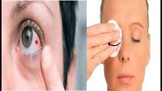 Que significa no o um olho coágulo