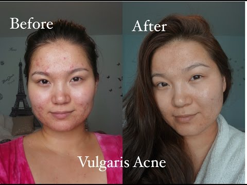 Үрэвсэлтэй батганаас салах аргууд | How to defeat Vulgaris Acne