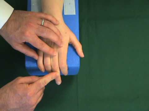 Extensor tendon injuries of the fingers and hand - Physiopedia