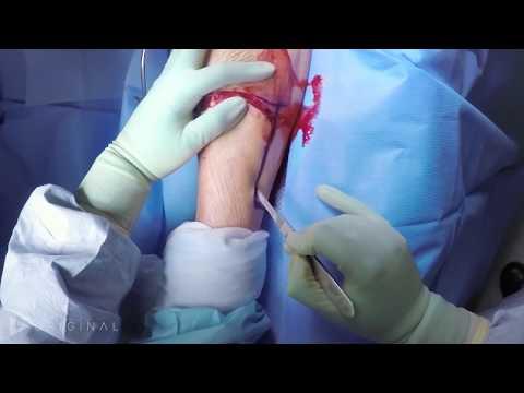 Below Knee Amputation (BKA) - Dr. Jade Hiramoto