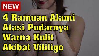 VITILIGO SEMBUH TOTAL  DENGAN 3 BAHAN ALAMI INI.