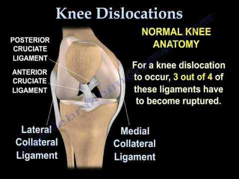Knee Dislocations - Everything You Need To Know - Dr. Nabil Ebraheim from YouTube · Duration:  5 minutes 24 seconds