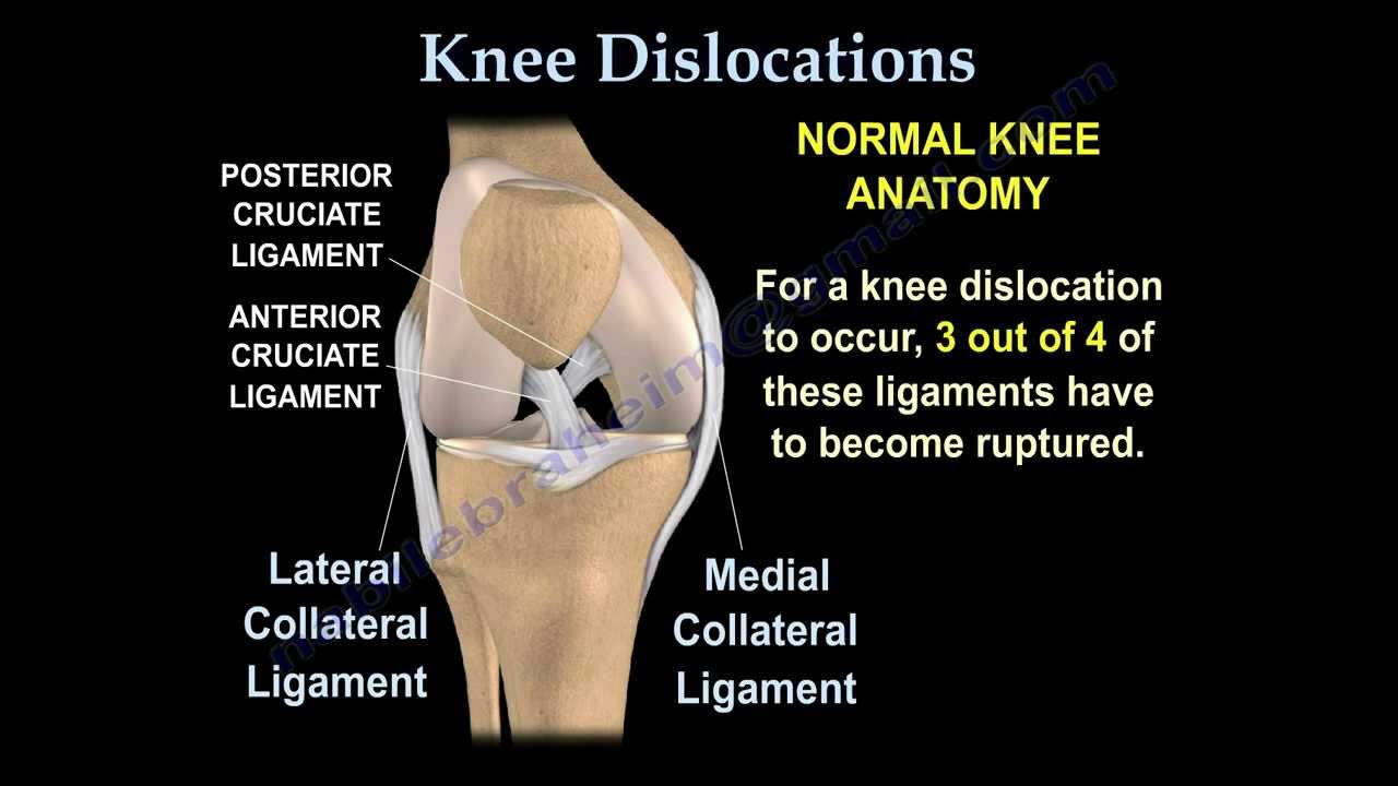 Knee Dislocations Everything You Need To Know Dr Nabil Ebraheim