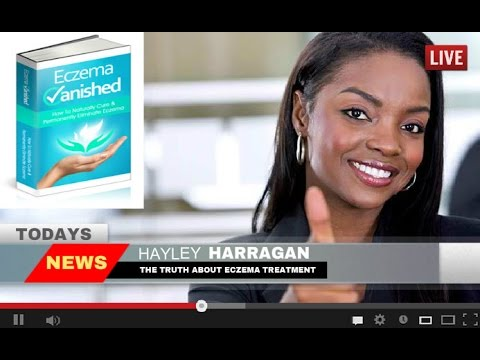 ➽ Eczema Treatment   Here's How I Permanently Cured My Eczema in 7 Days, Naturally!