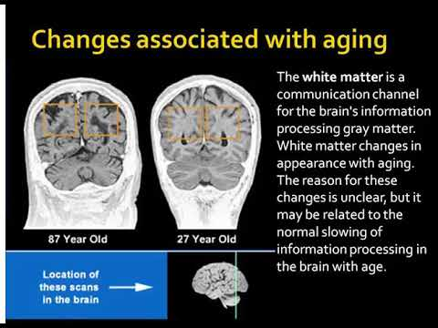 myths about the aging brain (4 minutes)