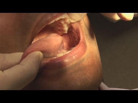 How To Check For Mouth For Cancer
