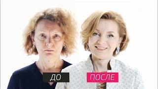 На 10 лет моложе - Как в эстетической стоматологии используют виниры