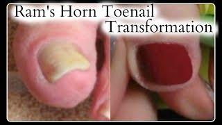 👣 Pedicure Tutorial Ram's Horn Big Toenail Transformation Optical Illusion