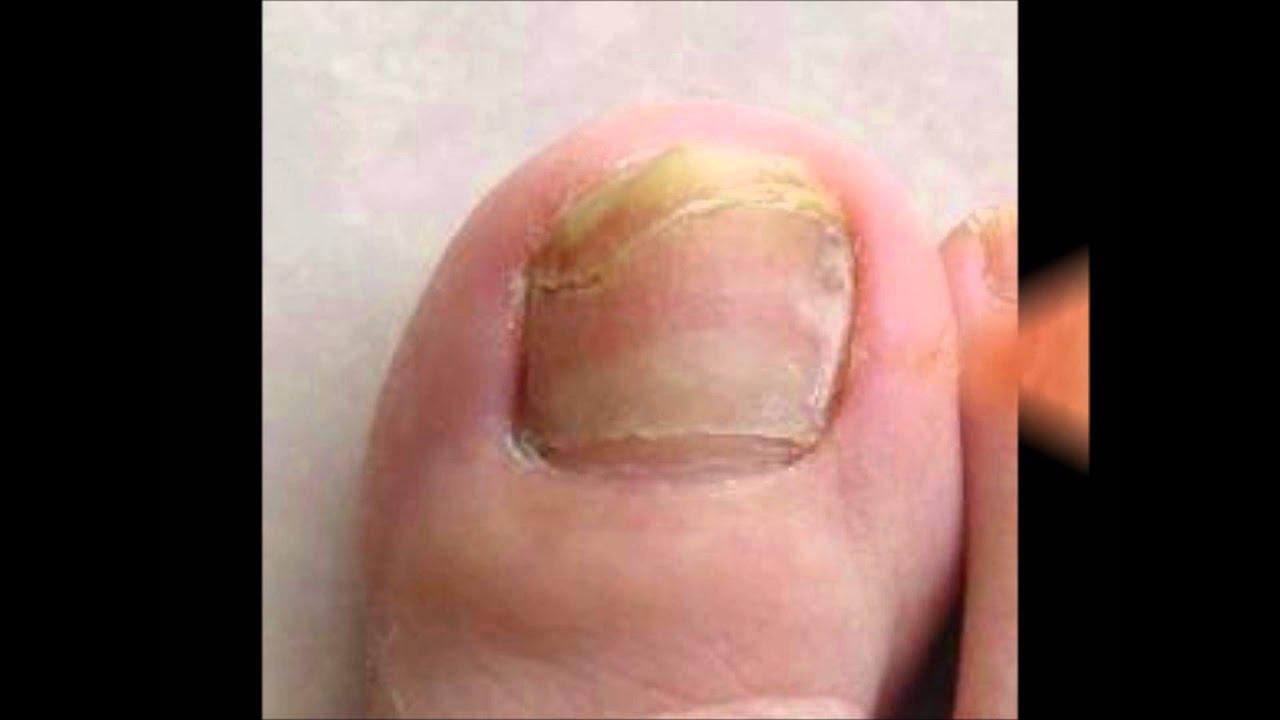 Cura di dermatite atopic a donne incinte