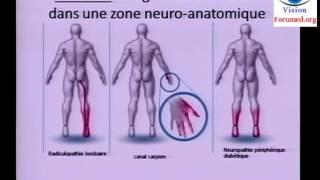Conduite à tenir devant une douleur neuropathique