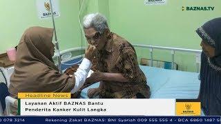 VIVA Top3: Kanker Melanoma, Gunung Merapi Waspada & Korupsi e-KTP.