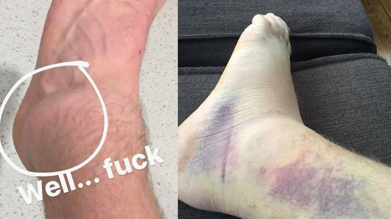 My First Parkour Injury Tore My Lateral Ligament Youtube