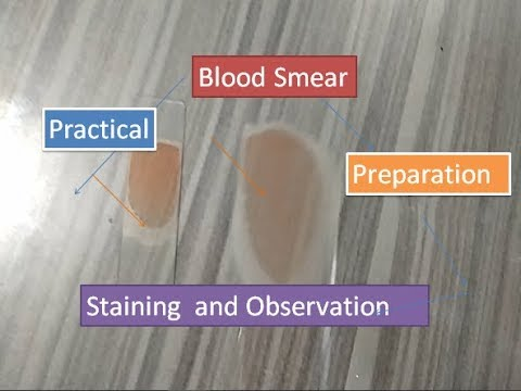 Blood Smear preparation, staining and observation