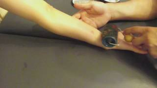 Массаж рубцов и шрамов