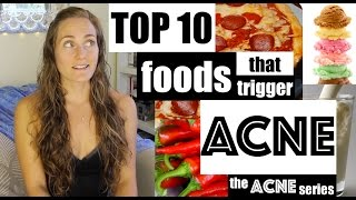 Top 10 Worst Foods that TRIGGER Acne Breakouts - The Acne Series