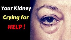 hqdefault - Puffy Eyes And Kidney