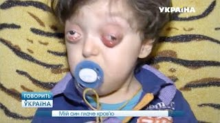 Мой сын плачет кровью (полный выпуск) | Говорить Україна