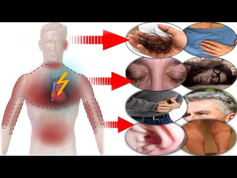 YOUR Body Will Warn You With These 8 Signs A Month Before a Heart Attack, AWARE!