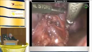 Рудин Ю Э - Эндовидеохирургия в детской урологии(http://uromedhelp.com - профессиональная медицинская помощь. Данное видео носит исключительно информационный харак..., 2016-06-06T11:30:23.000Z)
