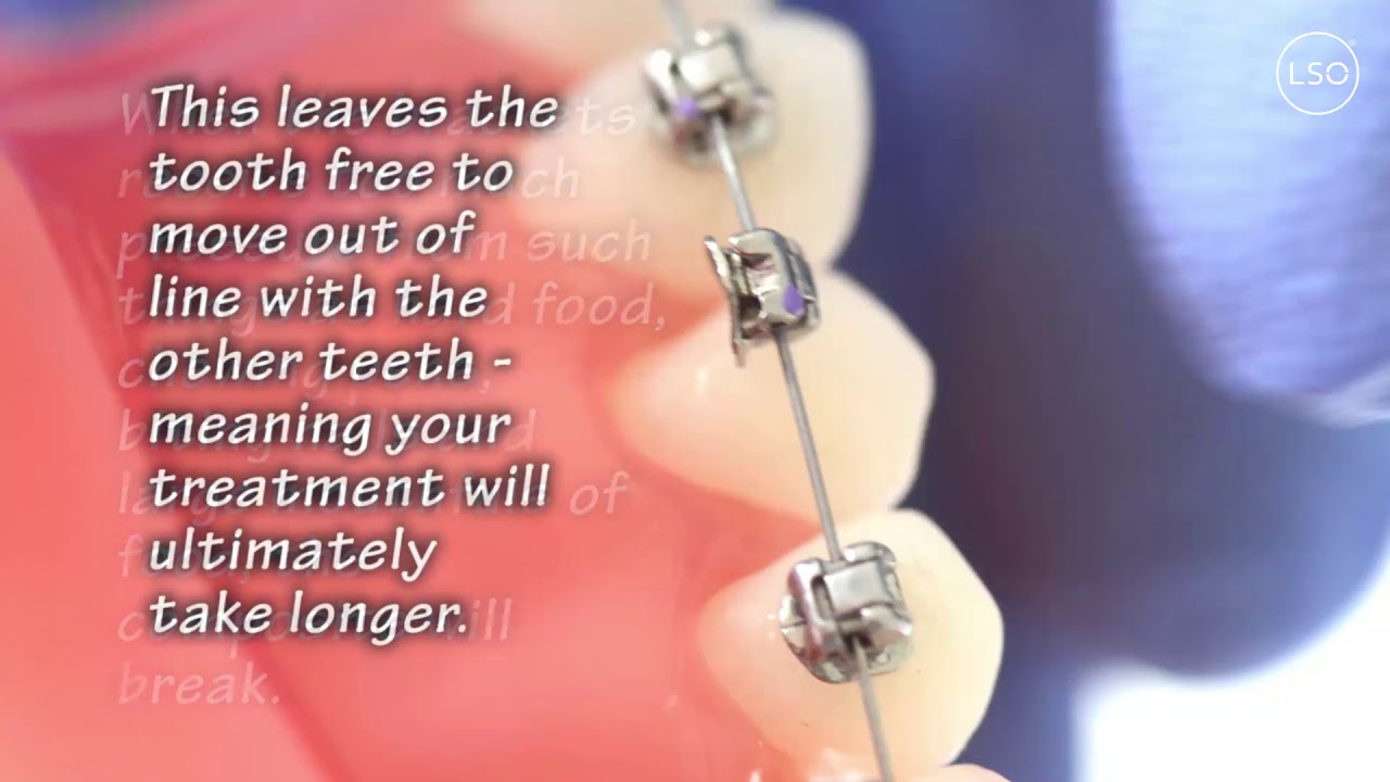Leamington Spa Orthodontics - Confidence in your smile