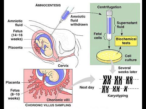 Amniocentesis vs Chorionic Villus Sampling - YouTube