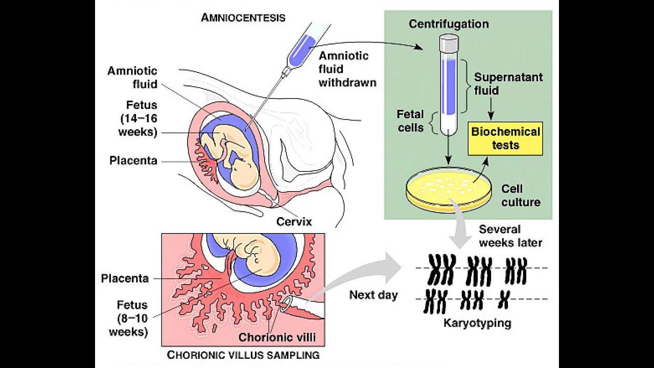 Amniocentesis vs Chorionic Villus Sampling