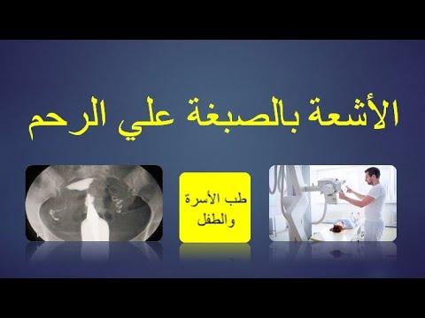 الأشعة بالصبغة على الرحم فوائدها ومخاطرها وكيفية التحضير لها شرح تفصيلي عن أشعة الصبغة على الرحم Youtube