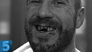 5 WWE Wrestlers Who Lost Teeth During A Match
