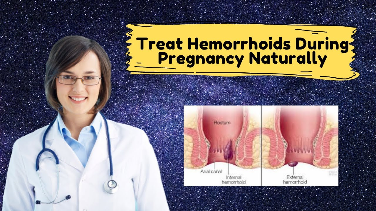 Treat Hemorrhoids During Pregnancy Naturally - YouTube