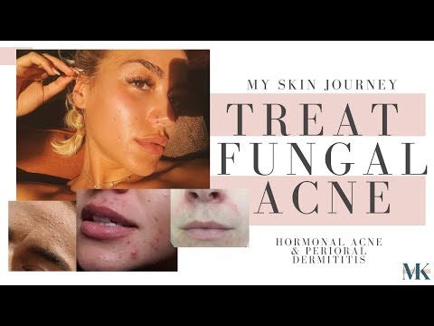 how-to-treat-tiny-bumps-|-fungal-acne,-hormonal-acne-+-perioral-dermatitis-treatments