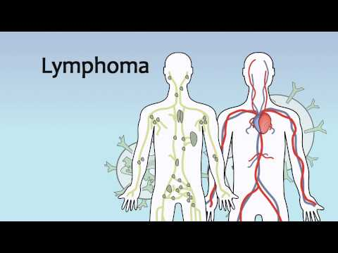 Video 19 Blood Cancers