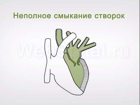 Сердечная недостаточность митрального клапана 3 степени