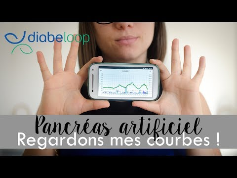 #5 - Diabeloop, Regardons Mes Courbes !