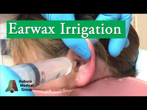 Ear Wax Irrigation | Auburn Medical Group