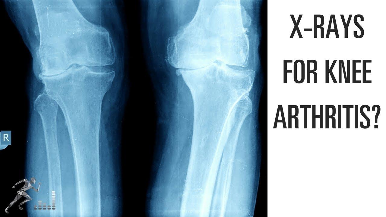 X Ray And Mri For Knee Arthritis Youtube