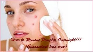 How to Remove Pimples Overnight!!! (Guaranteed less acne)