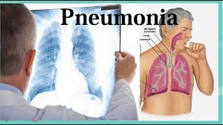 Pneumonia adalah penyakit yang menyerang paru-paru. Kondisi ini bisa disebabkan oleh infeksi virus, .
