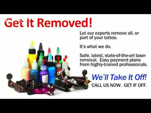 Columbia Tattoo Removal Choice for Columbia, SC