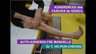 Adhérences Fascias profonds du Genou: Auto-ostéopathie simplifiée