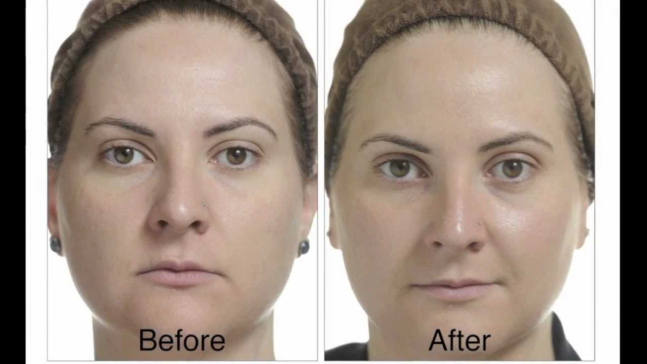 What Happens After A Chemical Peel Youtube