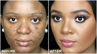Video ACNE PRONE SKIN?!? LEARN HOW TO COVER ACNE, DARKSPOTS & HYPERPIGMENTATION (ACNE FOUNDATION ROUTINE ) download MP3, 3GP, MP4, WEBM, AVI, FLV Agustus 2017