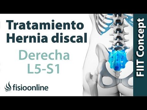 hernia de disco lumbar l5 s1 sintomas