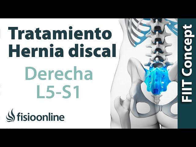 L5 s1 cronica radiculopatia
