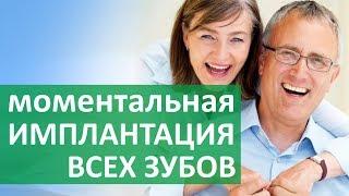 Имплантация зубов в Москве. 😃 Об имплантации в Москве при полном отсутствии зубов. Алена.